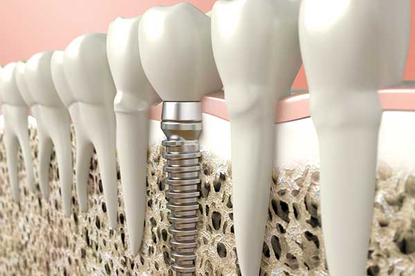 Bone Grafting & Implants in West Islip, NYC & Lake Success