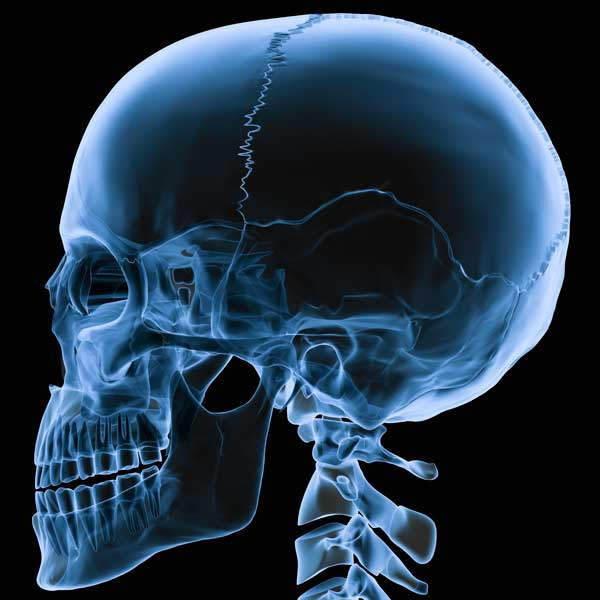 Medication-Related Osteonecrosis of the Jaw