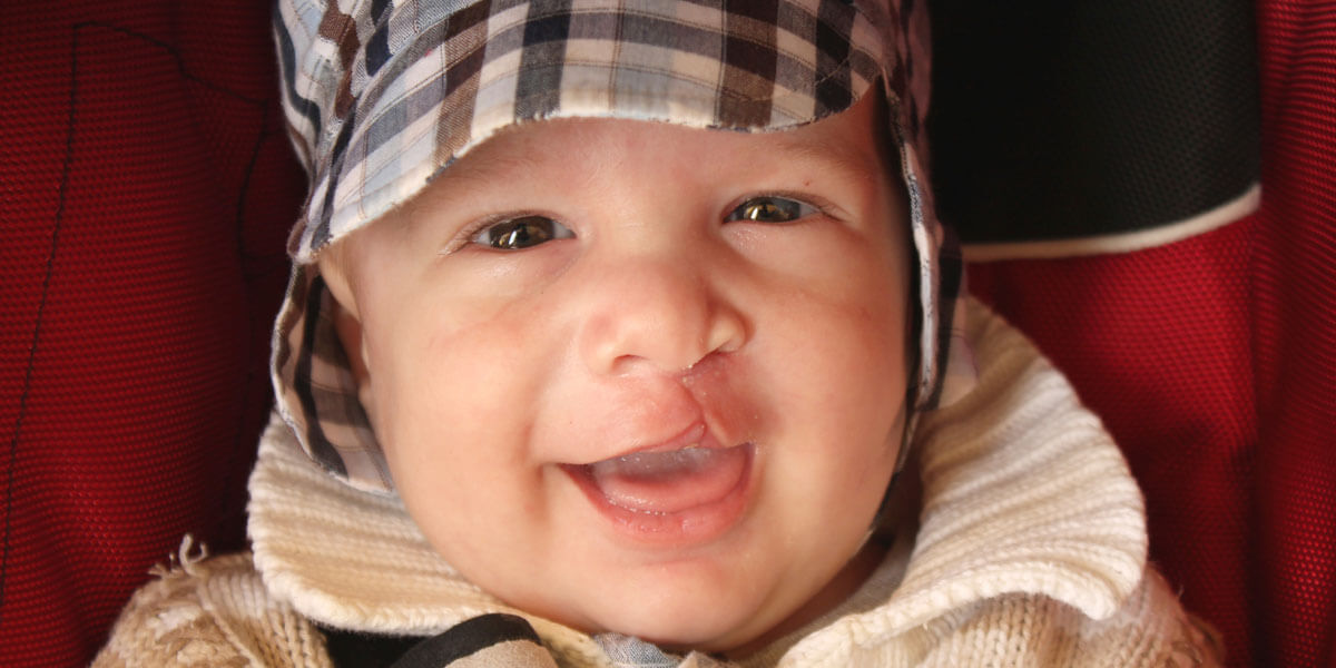 Baby with a cleft palate