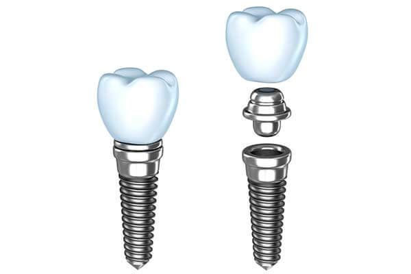 Single Dental Implants in West Islip, NYC & Lake Success