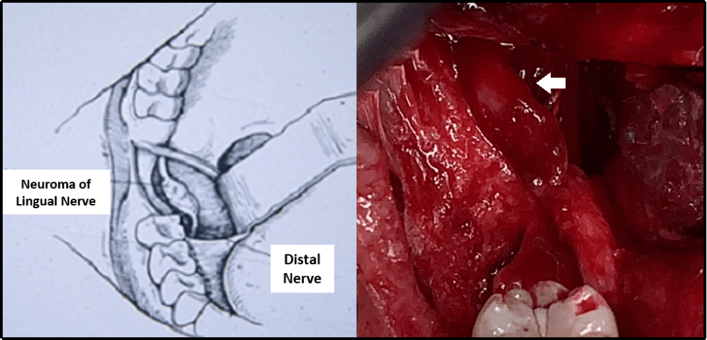 Figure 3 Photo of Neuroma of Lingual Nerve