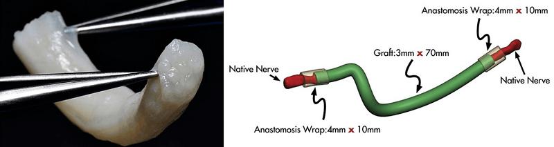 Figure 6 Image of Nerve Grafting
