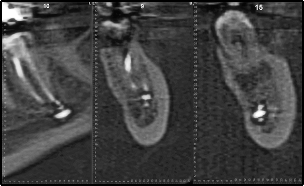 Figure 4 CBCT Demonstrating Root Canal Filling Material Within the IAN