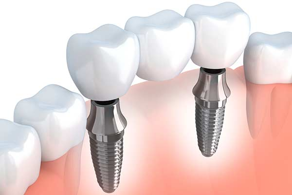 Implant Supported Bridge in West Islip, NYC & Lake Success
